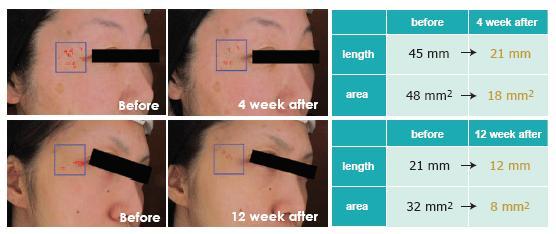 zdjęcie redukcji zmarszczek przed i po kuracji