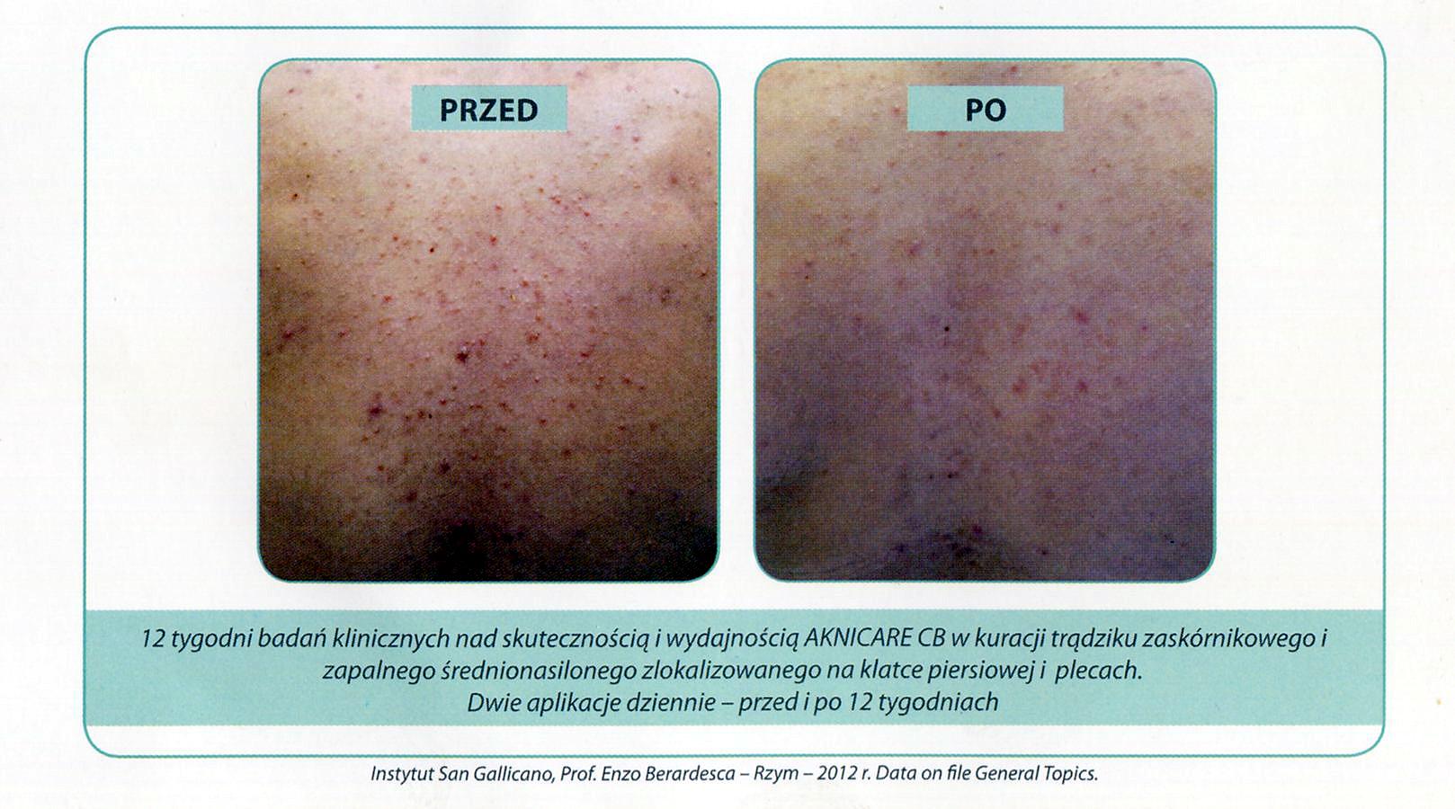 efekty stosowania aknicare chest & back